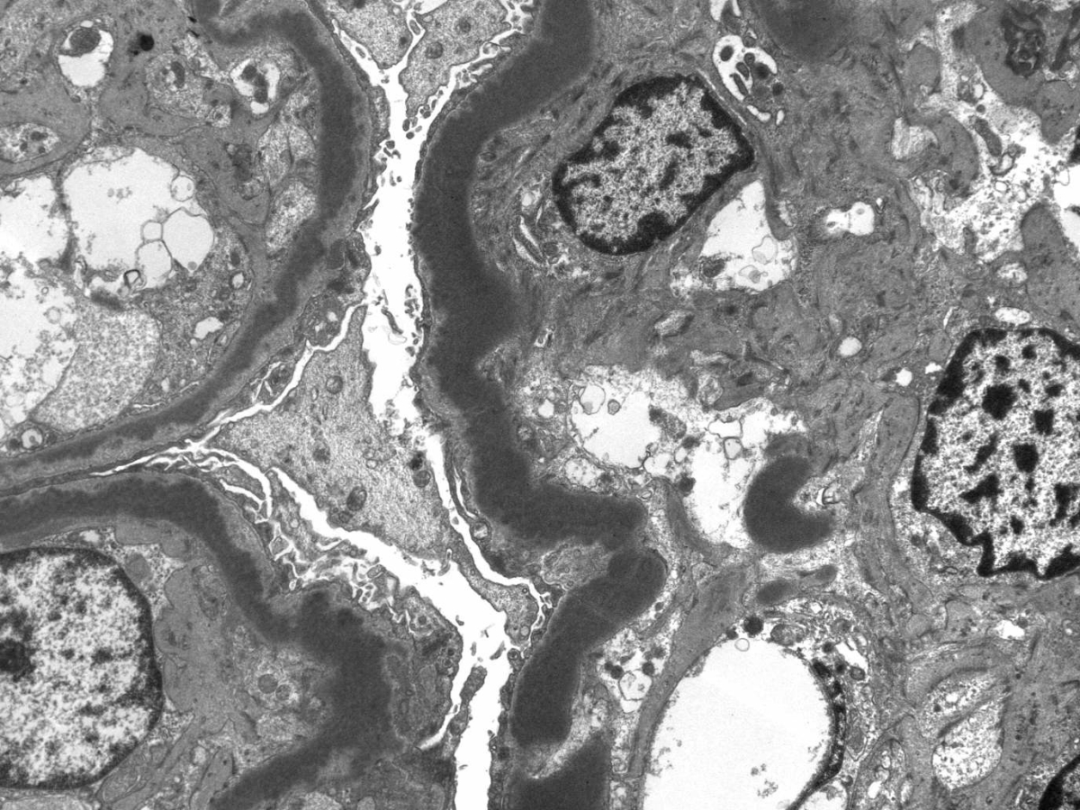 Test Your Knowledge: The Rise of C3 Glomerulopathies – AJKD Blog