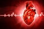suddencardia deathvsACS