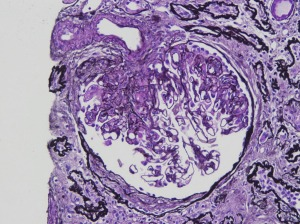 Atlas Hilar Variant of FSGS Fig 1