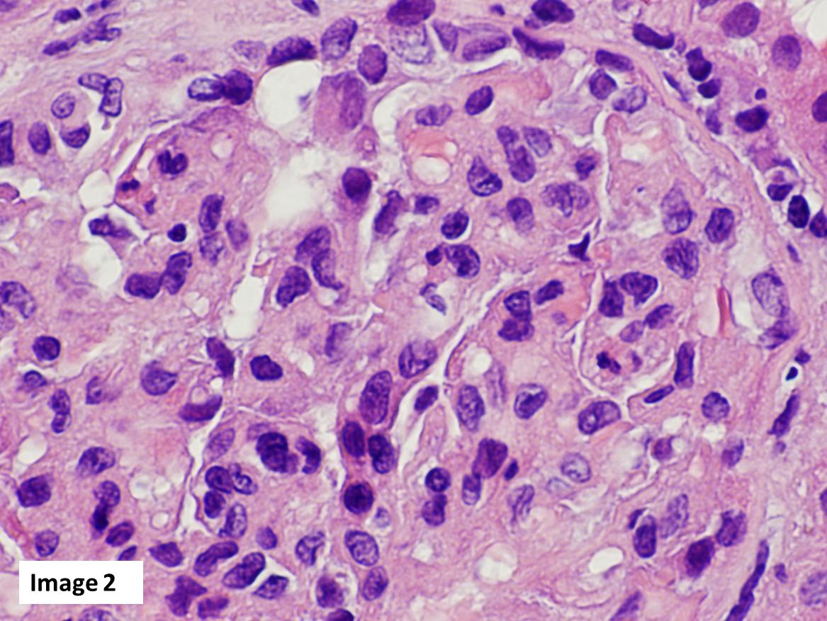 Atlas: Clinical Quiz 4 – AJKD Blog