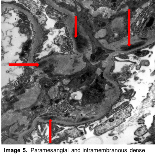 Atlas 4_Image 5A