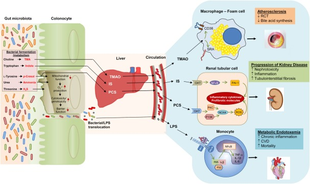 Fig 2 from Ramezani et al AJKD, © National Kidney Foundation.