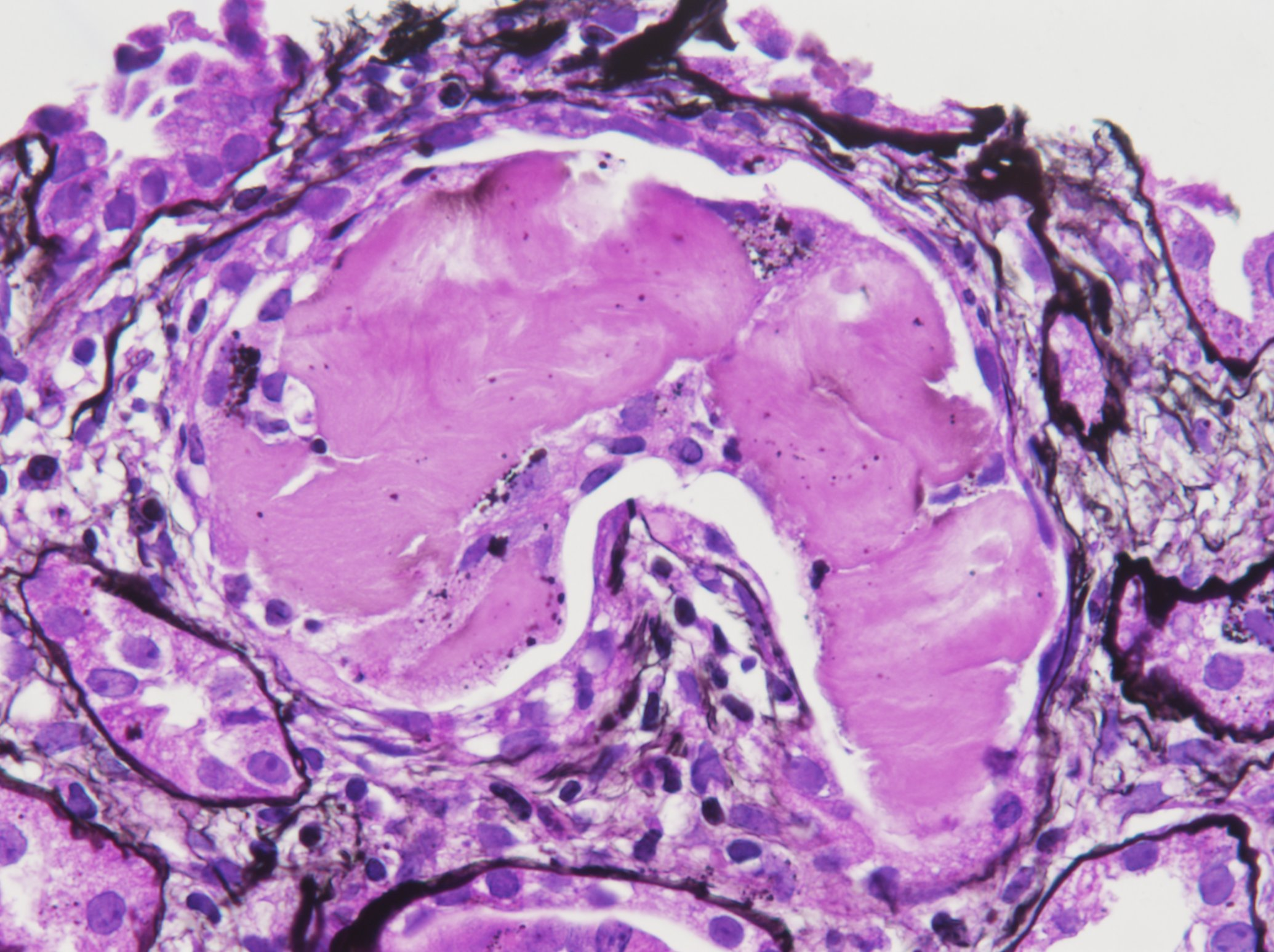 On Histopathology, The Disease Is Characterized By Formation Of Abnormal  Casts In The Distal Tubules Of The Kidney. The Casts Appear Fractured In  Appearance ...