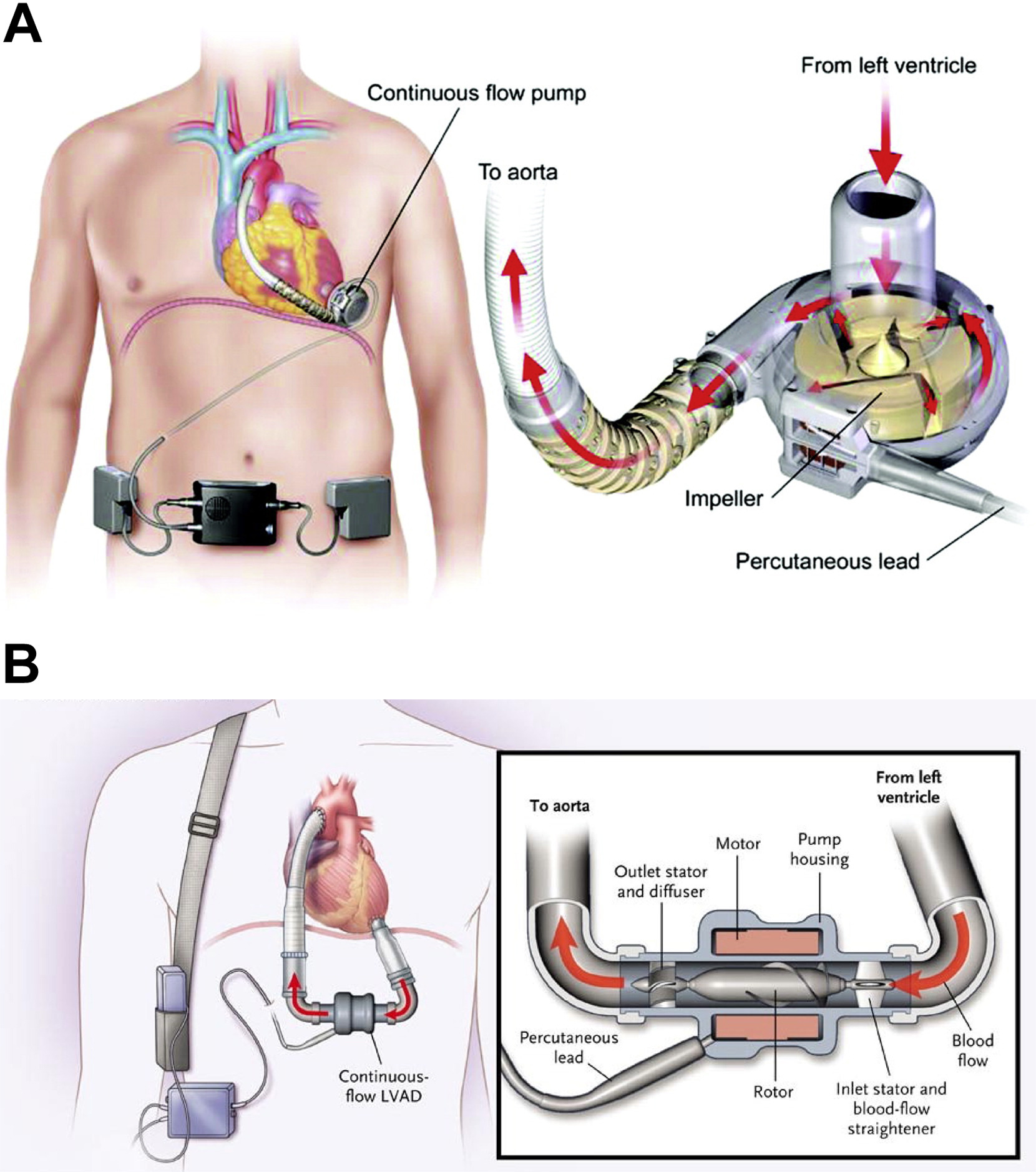 Left Ventricular Assist Devices And Kidney Function An Overview For