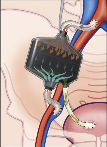 Portable and Implantable Artificial Kidneys: AWAK, WAK, and